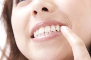 矯正治療は痛い?矯正歯科における痛みについて